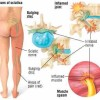 Sciatica is caused by irritation of the sciatic nerve. A slipped disc is the most common cause of sciatica.