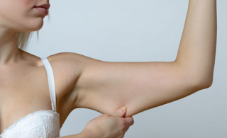 Some people face this problem of sagging arm because of aging, heavy body weight and hered...