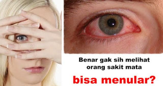 Zeropromosi - Mata merah, yang juga dikenal sebagai konjungtivitis adalah inflamasi atau i...